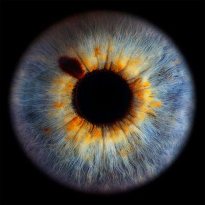 web-20200201-oogfoto-HR-Tiff-0651-vierkantkopie